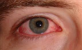 herpes occhio